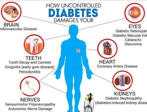 The Top Way Diabetes Affects Your Body and Causes Complications